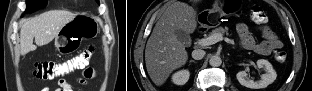 Gastric Angiomyolipoma, a Very Rare Cause of Upper